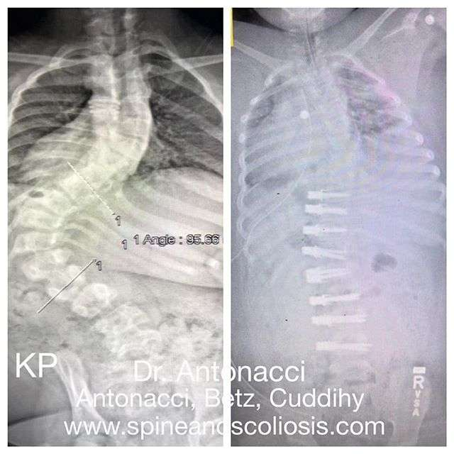 Before After Spine Scoliosis Surgery