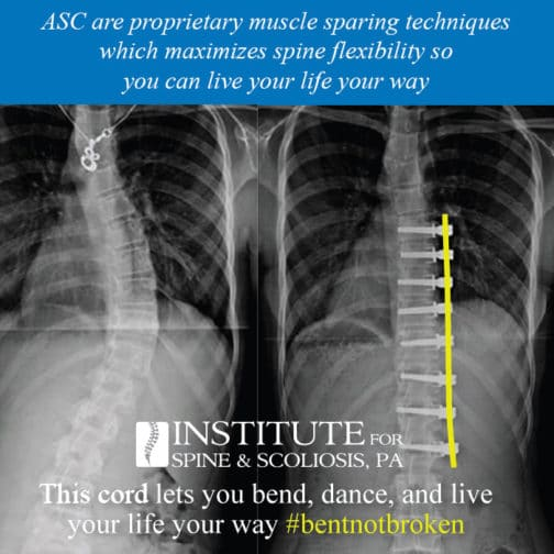 Bent Not Broken Scoliosis Treatment ASCCord