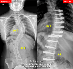 Photo of Before After Scoliosis Surgery KH 14 Scoliosis Single Double Curve from 70 Thoracic
