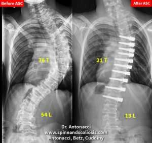 Treating Scoliosis with ASC Anterior Scoliosis Correction (ASC), 15 year old with a Scoliosis Single Severe Curve from 76 Thoracic